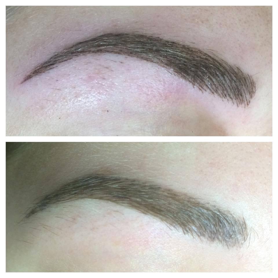 Boven foto is van gelijk na de behandeling, De onderste na genezing, alleen nog een nabehandeling nodig voor perfectioneren.